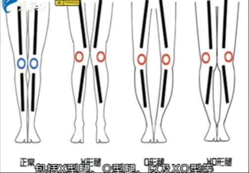 不良腿型可以矫正吗? 2017-09-03